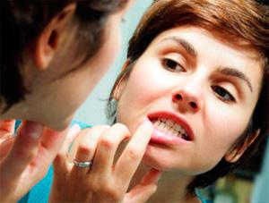 Как правило, ромашкой полощут рот для ослабления воспалений десен и устранения болевого синдрома.