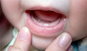 Прорезывающиеся зубы у ребенка