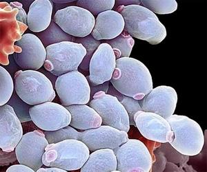 Противогрибковые свойства у ромашки не известны, использовать её для лечения молочницы бесполезно.