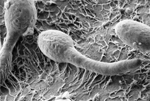 Candida albicans конкурирует за питательные вещества в слизи с другими бактериями, а при исчезновении последних бурно размножается.